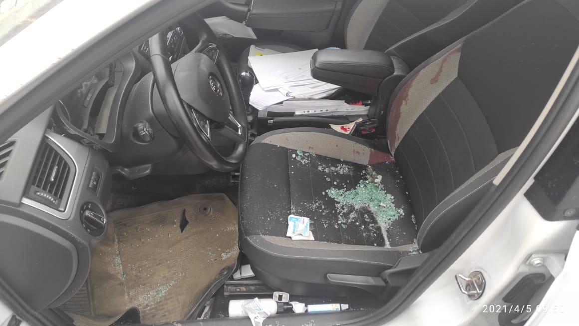 Обманул машину, но не себя: непристегнутый ремнем водитель легковушки получил тяжелые травмы в ДТП на Московском шоссе в Твери