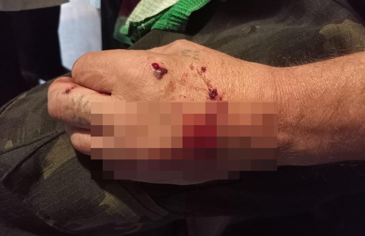 Волк ранил людей в Тверской области
