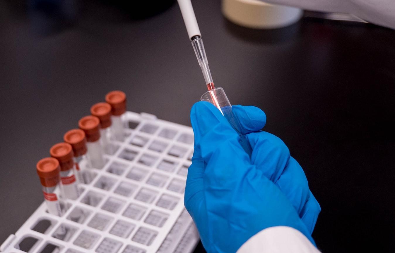Анализ на коронавирус теперь можно сдать бесконтактно - новости Афанасий