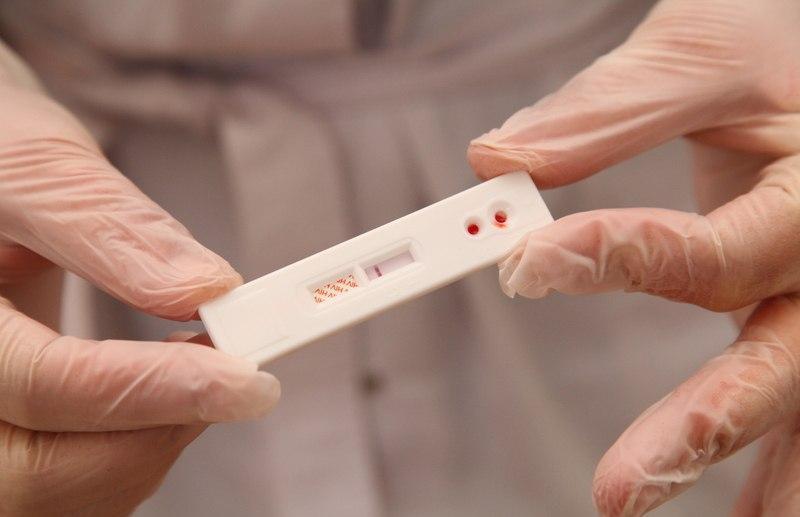 Жители Твери и Тверской области смогут бесплатно узнать свой ВИЧ-статус - новости Афанасий